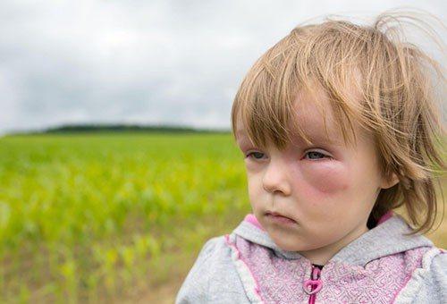 аллергия на насекомых у детей