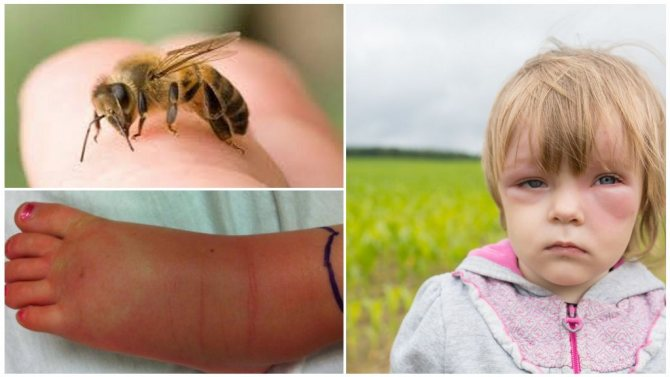 Аллергия на укус насекомого