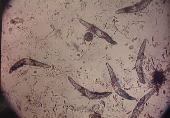 Анализ на демодекоз у собак: клещи под микроскопом