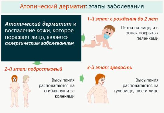 Атопический дерматит от подушки