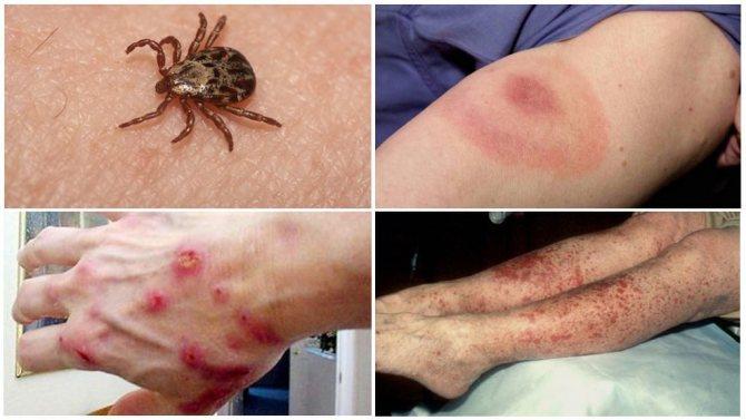 Болезни от укуса клещей у человека