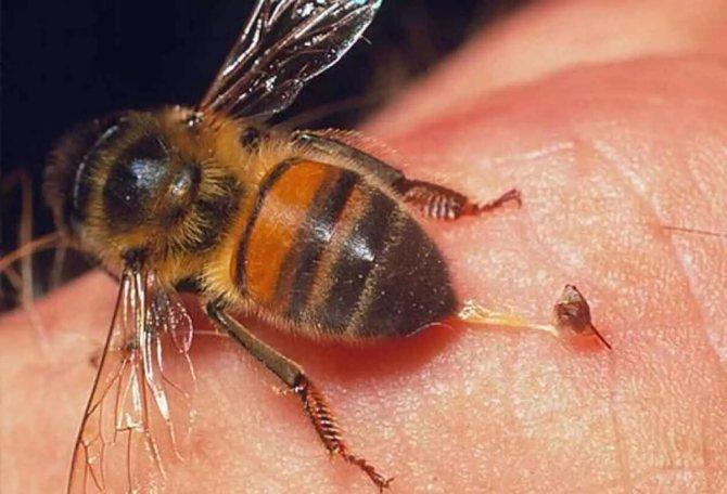 Что делать, когда укусила оса или пчела