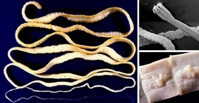 Глисты - кишечные черви, проживающие в желудочно-кишечном тракте