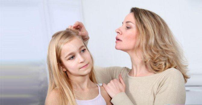Гниды в волосах: причины появления и как избавиться