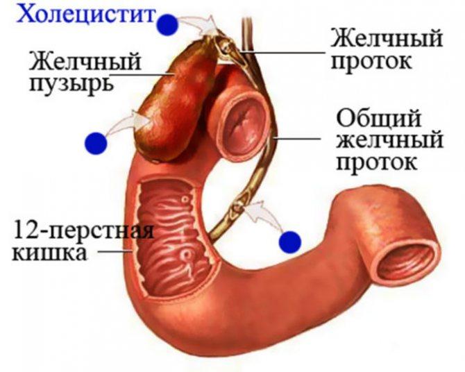 холецистит у кота причины заболевания и лечение