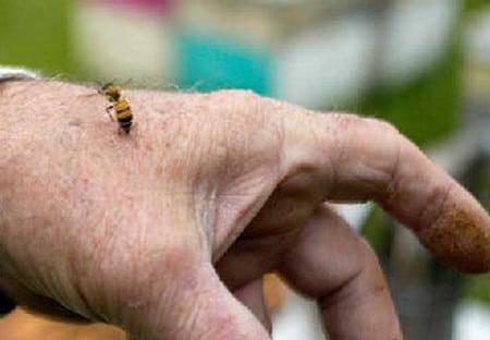 как поступить при укусе осы