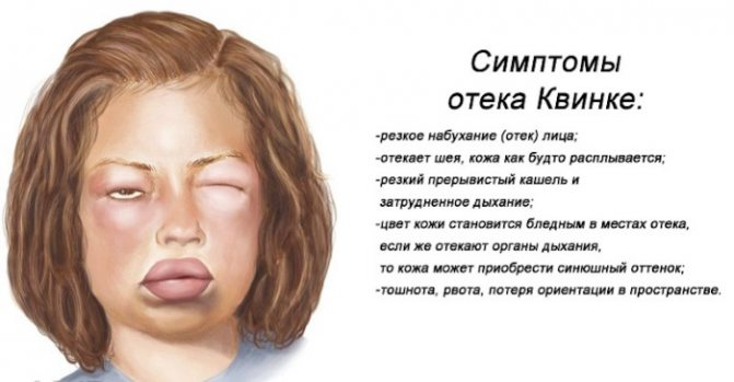 Как снять отек с лица быстро утром, при аллергии, Квинке, ушибе, ударе, синяке, укусе пчелы, осы, комара, мошки, после слез, запоя, пьянки, похмелья, операции, ожоге, флюсе, зубной боли, удаления зуба, прыща народными средствами в домашних условиях, таблетки, у ребенка и взрослого