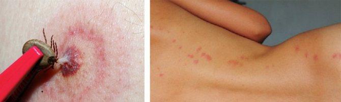Как вылечивать аллергию от укуса насекомых