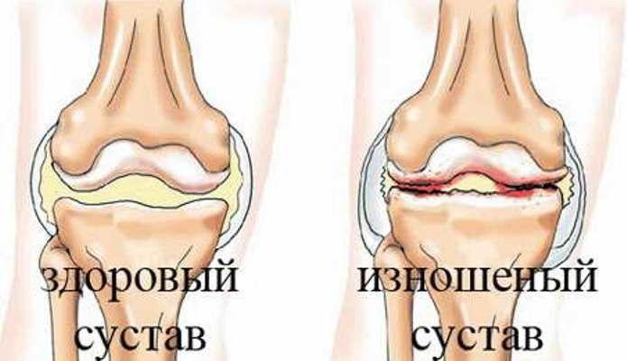 Кости изнутри при артрозе