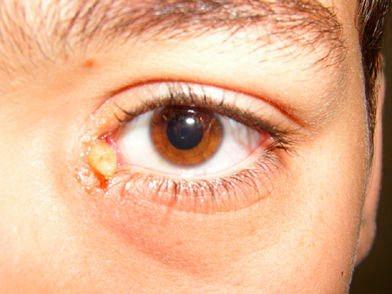 Личинка овода в глазу у человека - фото.