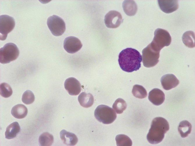 Мазок крови в норме. Лимфоцит окрашен фиолетовым