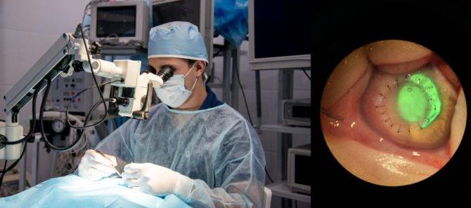 Микрохирургия под операционным микроскопом