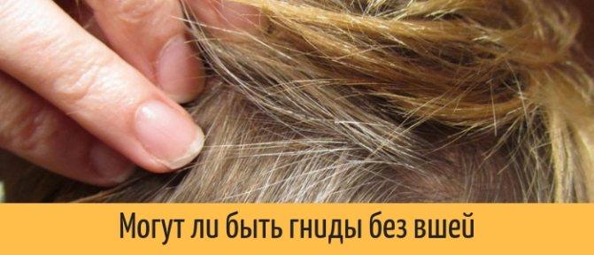 Сухие гниды — фото, как избавиться и могут ли быть гниды без вшей
