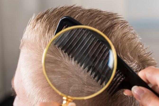 Обследование волосяного покрова головы