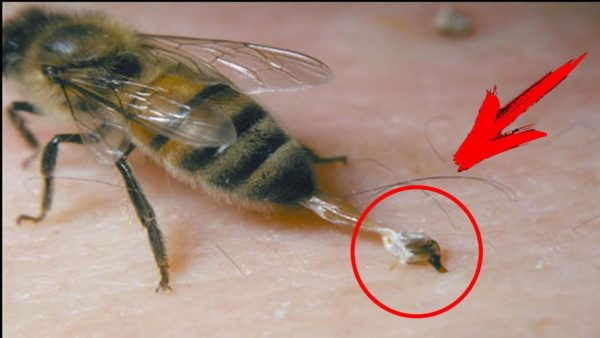 пчела после укуса