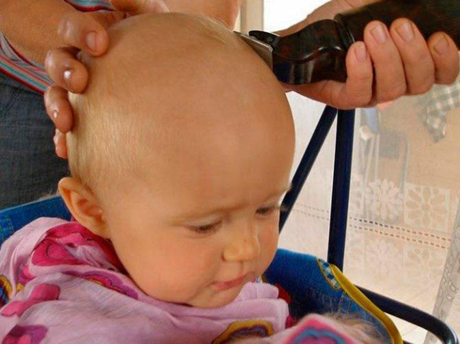 Побрить налысо от вшей - самый простой способ лечения