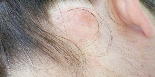 Почему чешется голова: Обычно лимфома появляется у людей старше 50 лет