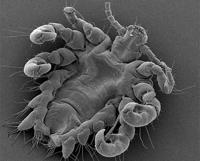 под микроскопом лобковые вши