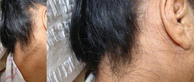подкожные вши у человека на теле