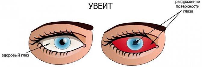 Раздражение поверхности глаза