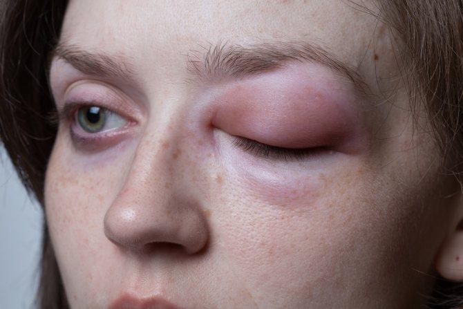 Развитие аллергии на укусы насекомых и методы лечения