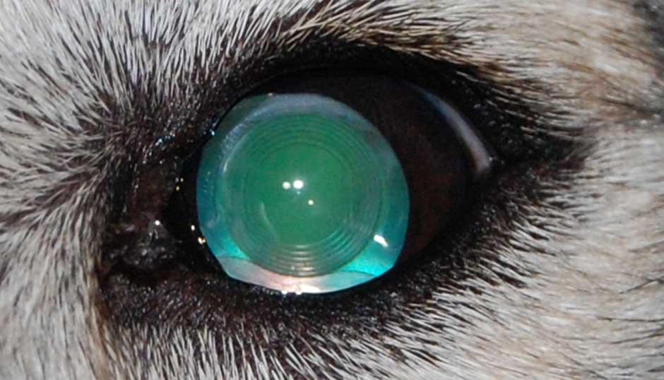 Результат удаления катаракты