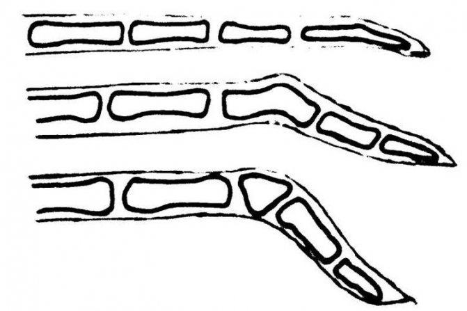 Схематическое изображение переломов хвоста