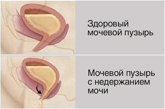 Состояние сфинктера мочевого пузыря