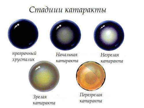 стадии течения катаракты у животного