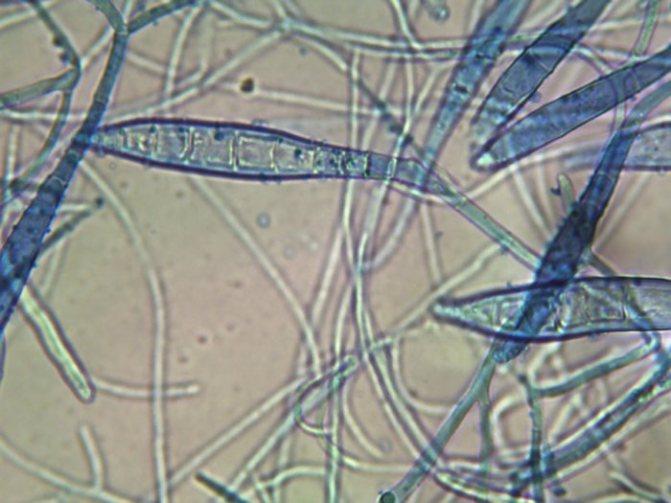 Трихофитии под микроскопом
