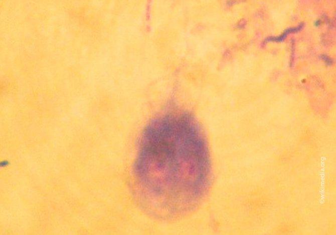 Трофозоит под микроскопом
