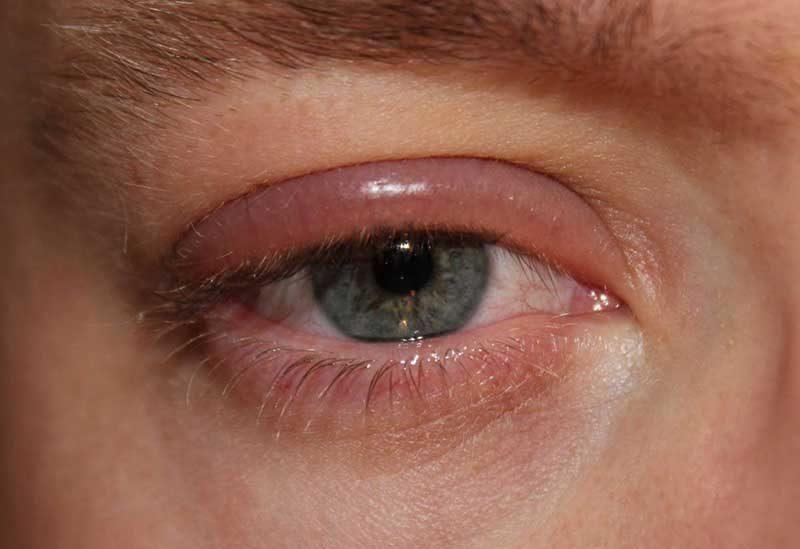 укус таракана на человеке в области глаз