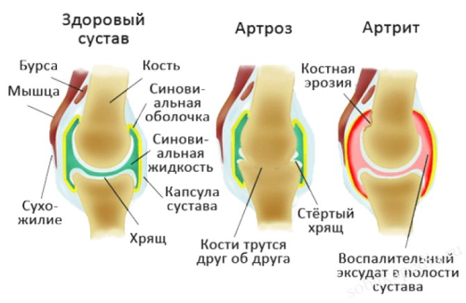 Виды артрита у собак