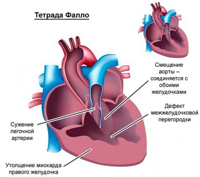 Врожденный порок сердца у кошки