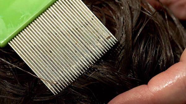 вычесывание волос
