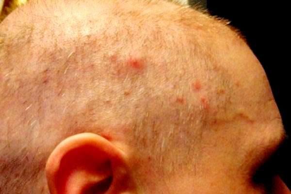 Является ли заблуждением, что вши живут под кожей головы