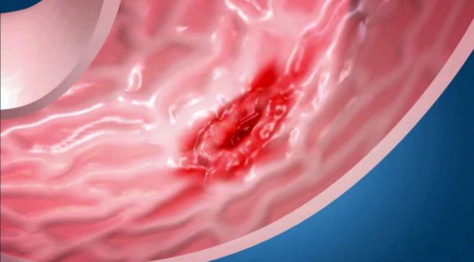 язва желудка у кота симптомы лечение